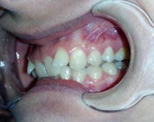 Fogaszat-ugyelet-fogszabalyozas-1